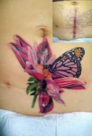 遮盖身上伤疤的纹身效果图案